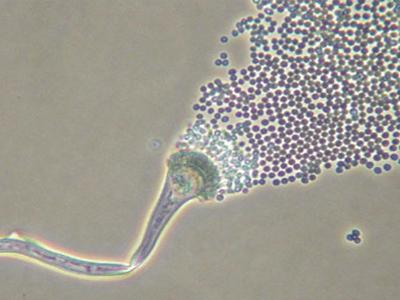 Magnified mold and mold spores
