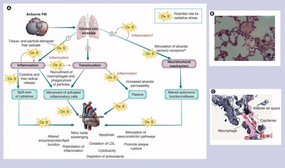 Possible mechanisms for cardiovascular effects from particle pollution